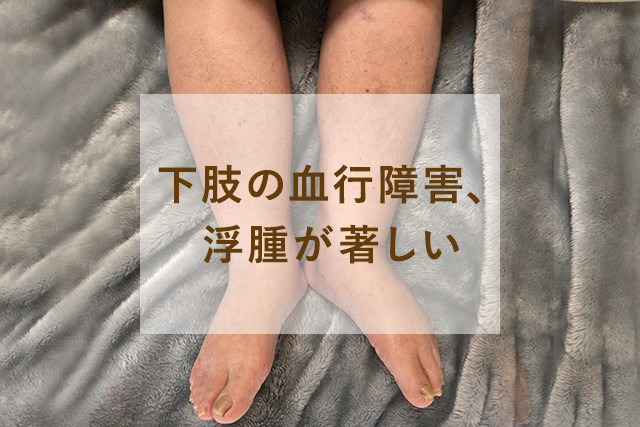 下肢の血行障害、浮腫が著しい